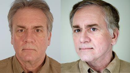 Más hombres estan recurriendo a la cirugia plástica