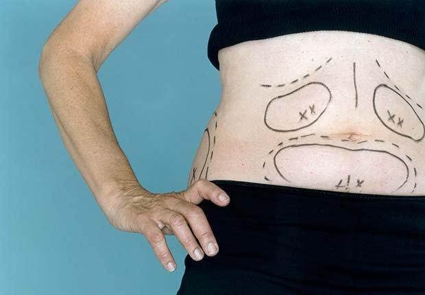 Marcas para hacer una liposucción - Dietas para adelgazar poco saludables