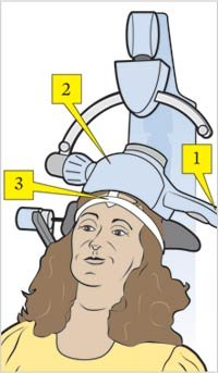 A treatment coil placed around the patient's head receives electrical currents, which are converted into an MRI-strength magnetic field.