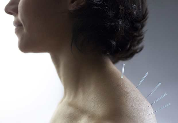 Mujer recibiendo acupuntura